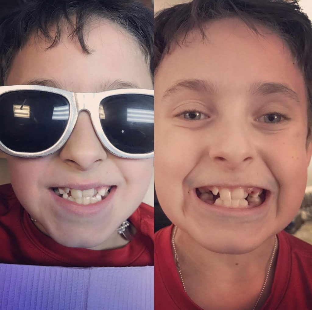 Side by Side Image of a boy, age 8, smiling big to show all of his teeth. Photo on the left shows a full mouth of teeth. Photo on the right shows teeth after four extractions.